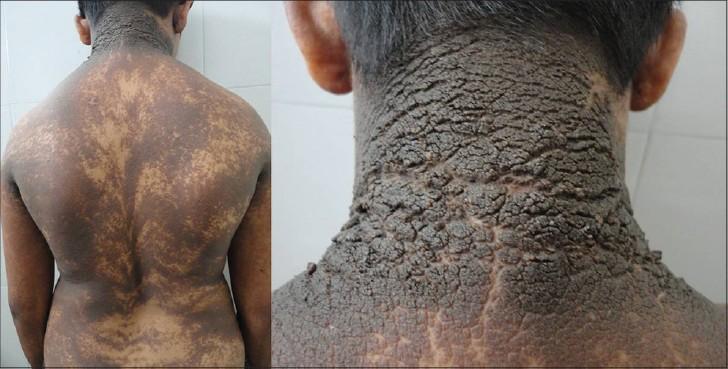 Epidermolytic Hyperkeratosis Face hyperkeratotic verrucous